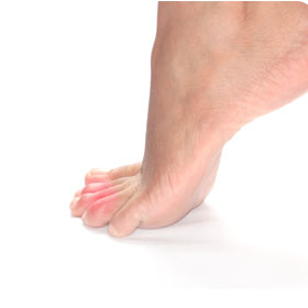 Overlapping Toes