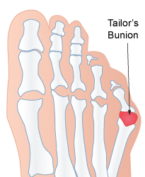 Bunionettes or Tailor's Bunions - Foot Solutions Richmond